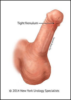 Urologist frenuloplasty procedure NSW